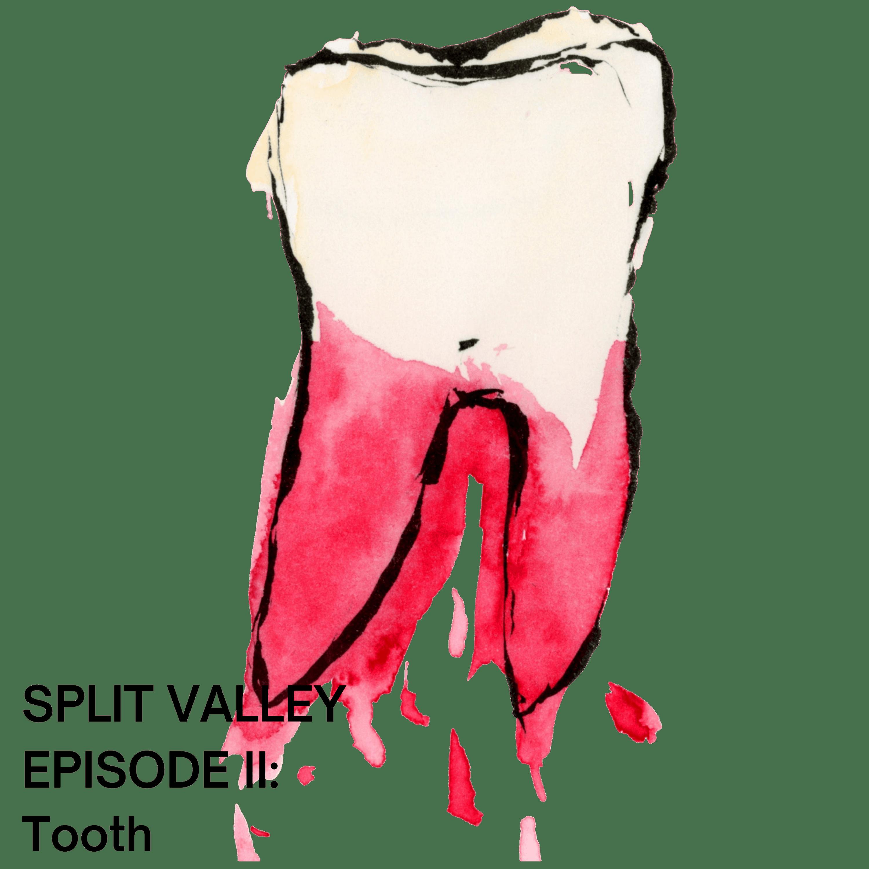 Episode II: Tooth